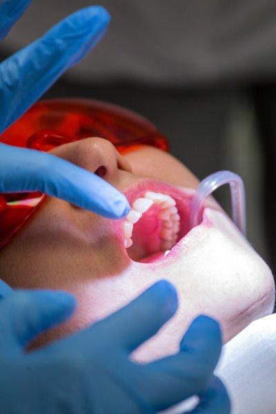 How to treat Teeth pain
